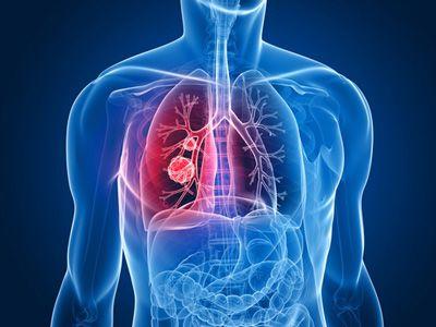 cancer pulmonar cu celule non small)
