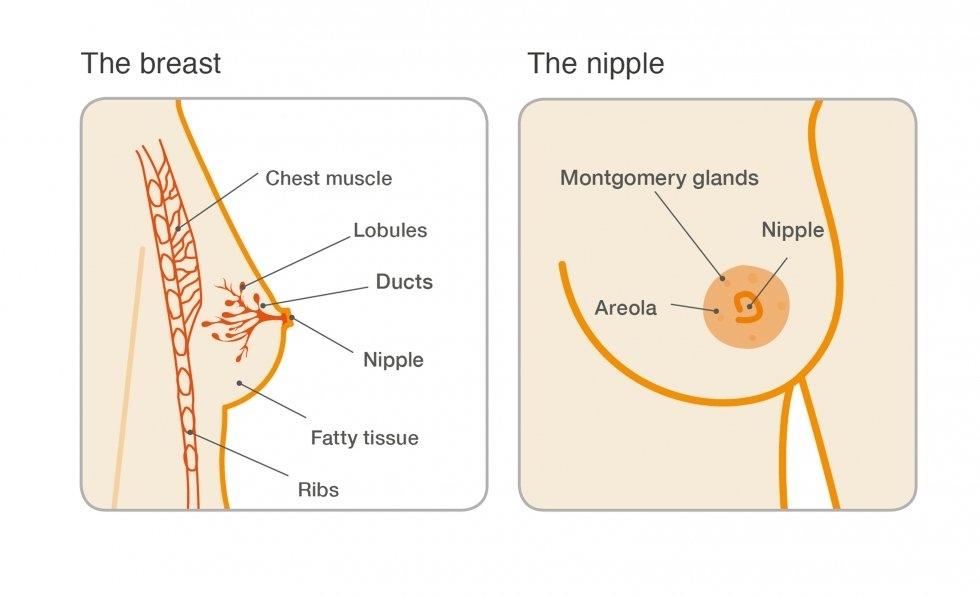 papillomas of breast cancer)