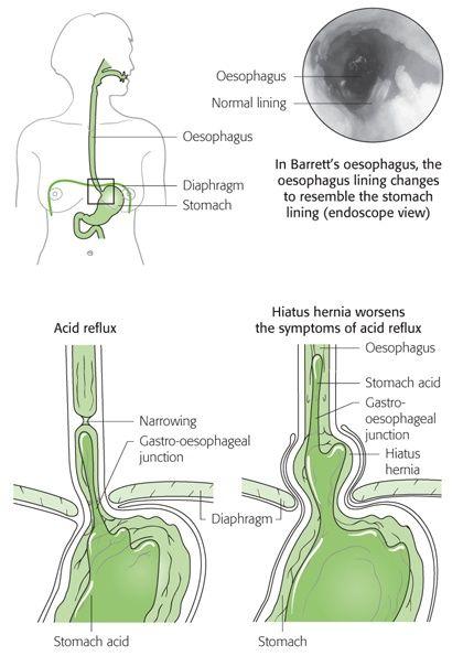 cancer gastro-esofagian)