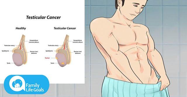 cancerul testicular doare