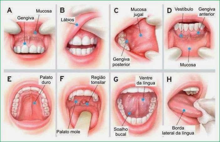 cancer bucal sintomas