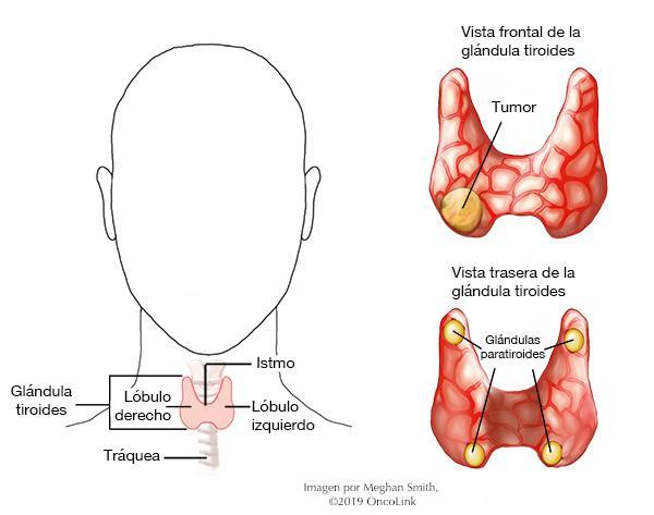 cancer renal tratamiento)