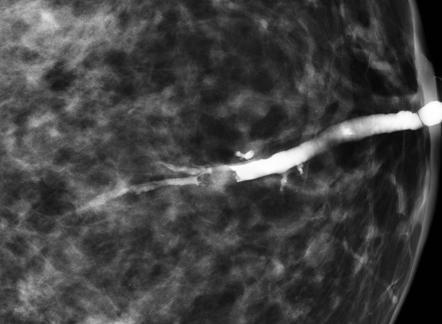 Infecţia cu virusul papilloma uman: sinteze şi abordări