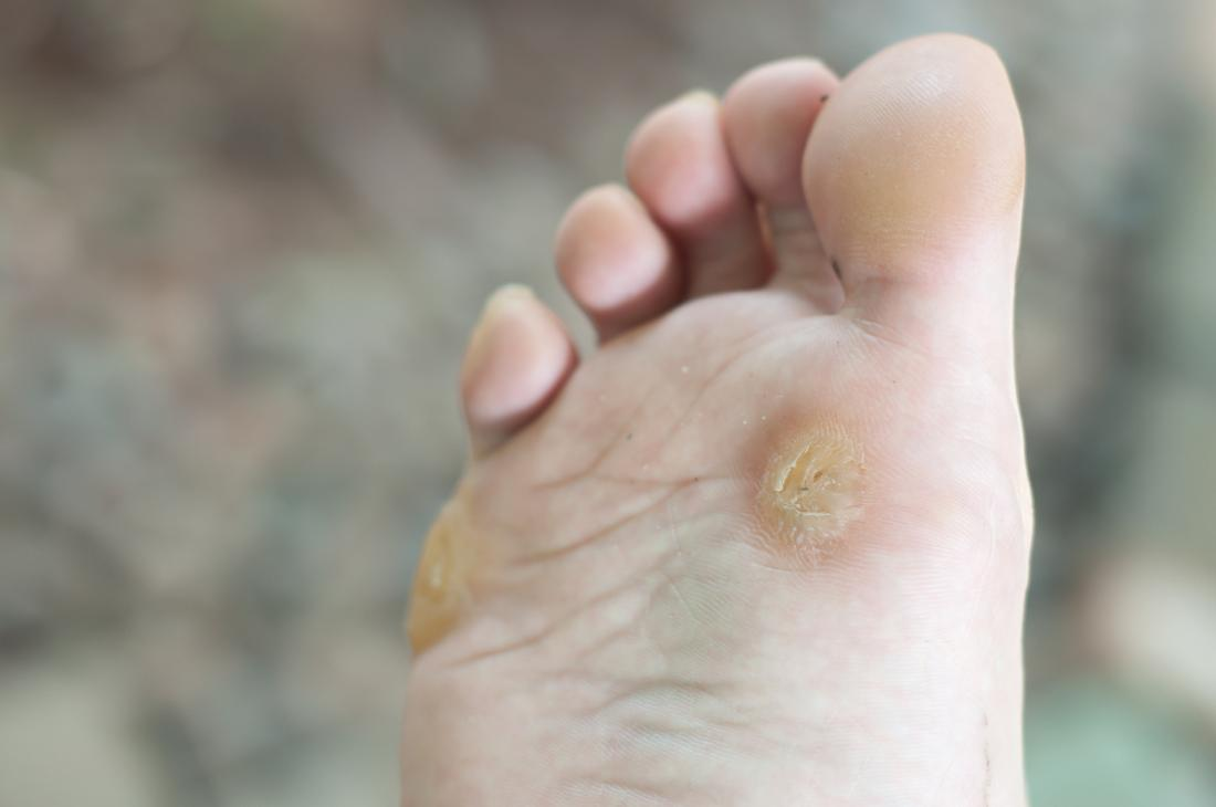 warts on hands and feet)