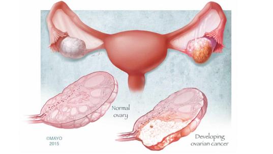 histerectomie - Traducere în engleză - exemple în română | Reverso Context