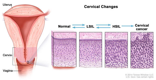 does hpv cause precancerous cells)
