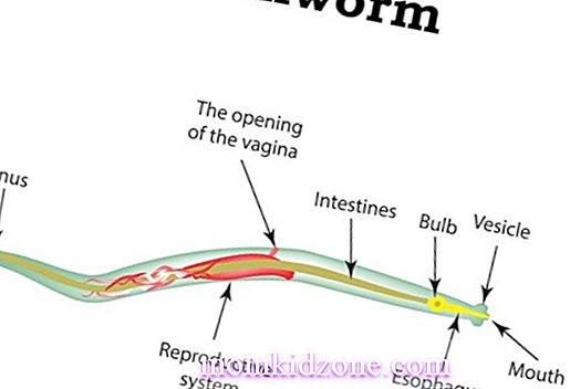 ossiuri rimedi naturali in gravidanza