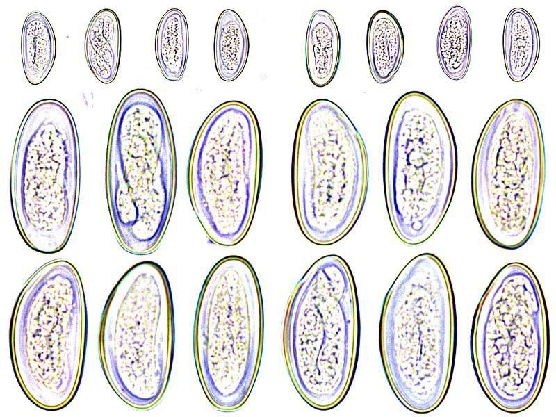 enterobius vermicularis morphology)