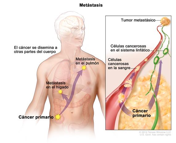 cancer que es metastasis