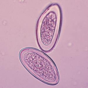 papillomavirus u muzov