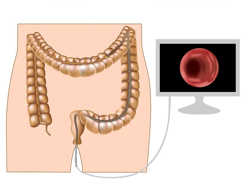 cancer gastric vindecat paraziți in ficat