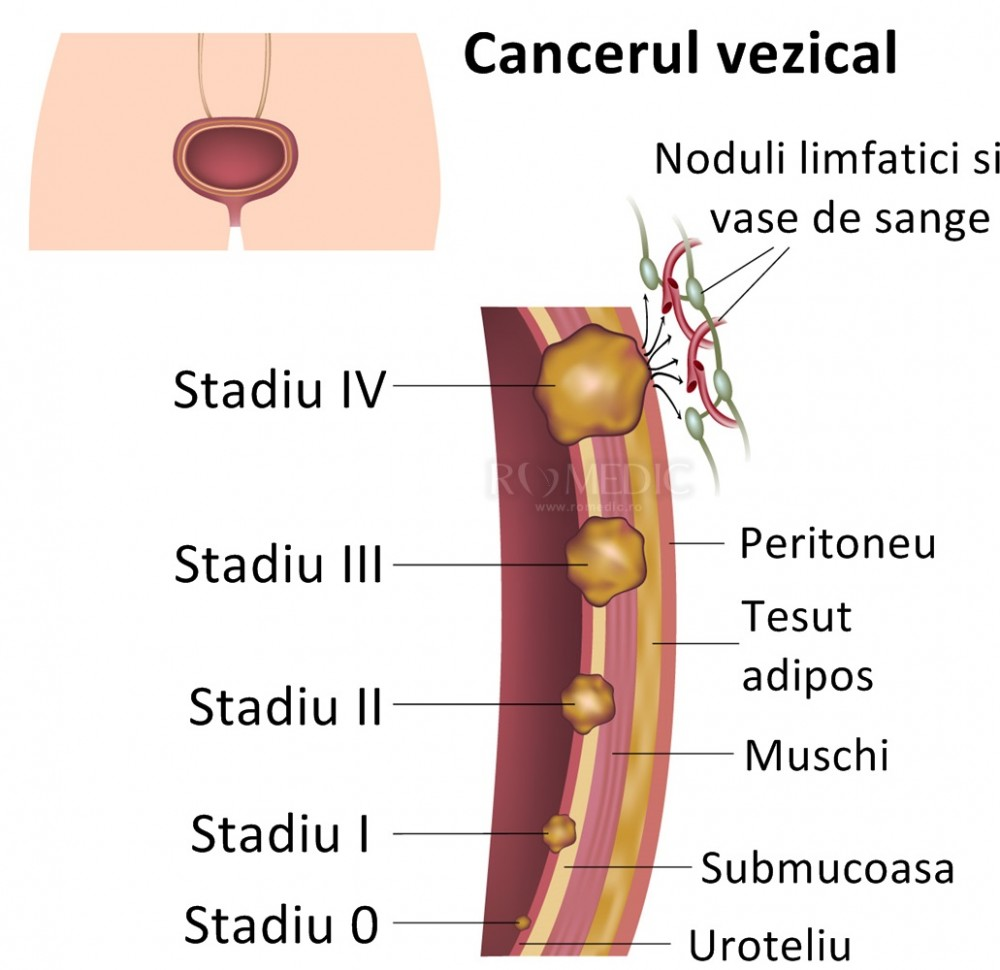 cancerul de vezica urinara la barbati