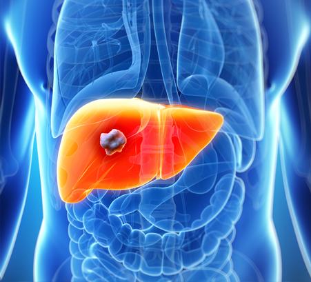 hepatocellular cancer lung)