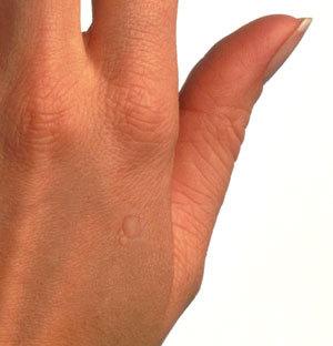 virus papiloma humano verrugas manos)
