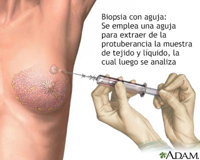 papiloma intraductal en hombres