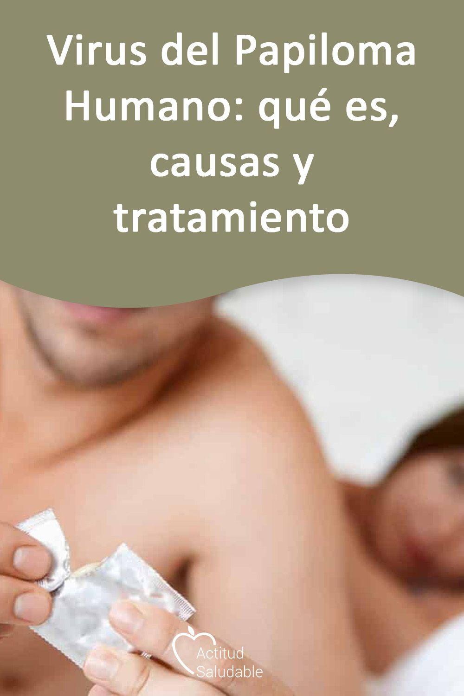 causas del virus papiloma humano