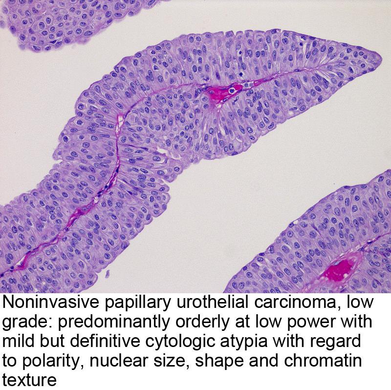 Adenom prostatique et hematuria icd-9