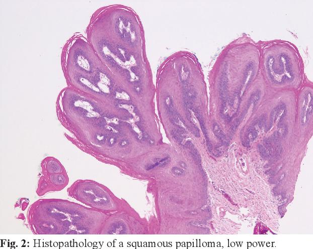 tongue papilloma pathology