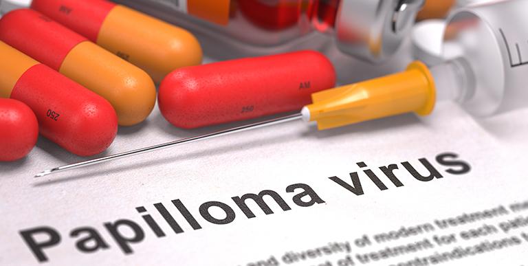 papilloma virus recidivo