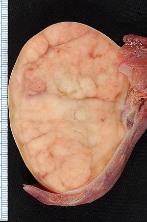 cancer testicular linfonodos