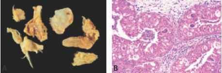schneiderian papilloma immunohistochemistry)