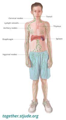 cancer de hodgkin en ninos)