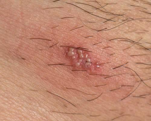 come si presenta il papilloma virus nelluomo)