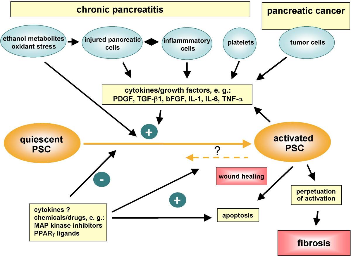 pancreatic cancer vs pancreatitis)
