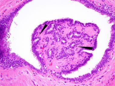 intraductal papilloma breast histology)