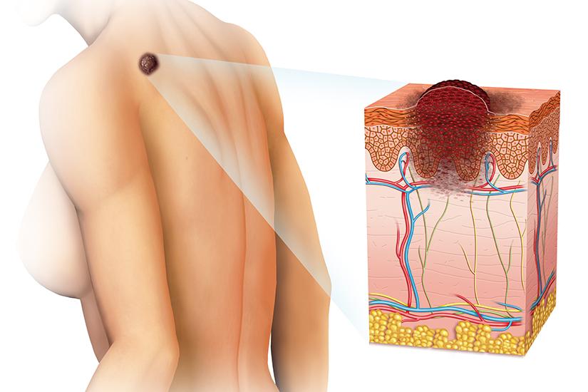 cancer de piele de la soare virus del papiloma humano sintomas en la piel