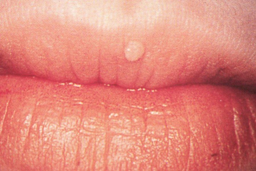 papilloma virus alle labbra)