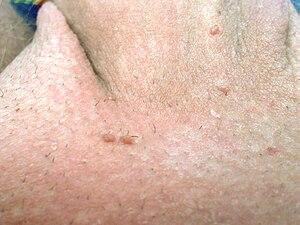 papiloma queratosico benigno)