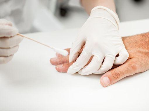 verrue papillomavirus contagieux cancer colon anemia