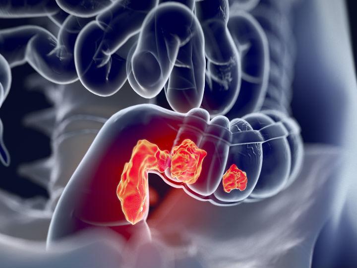 biodescodificacion cancer de colon