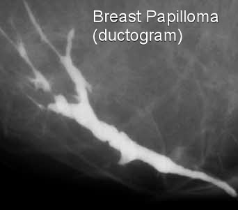 treatment of papilloma in breast)