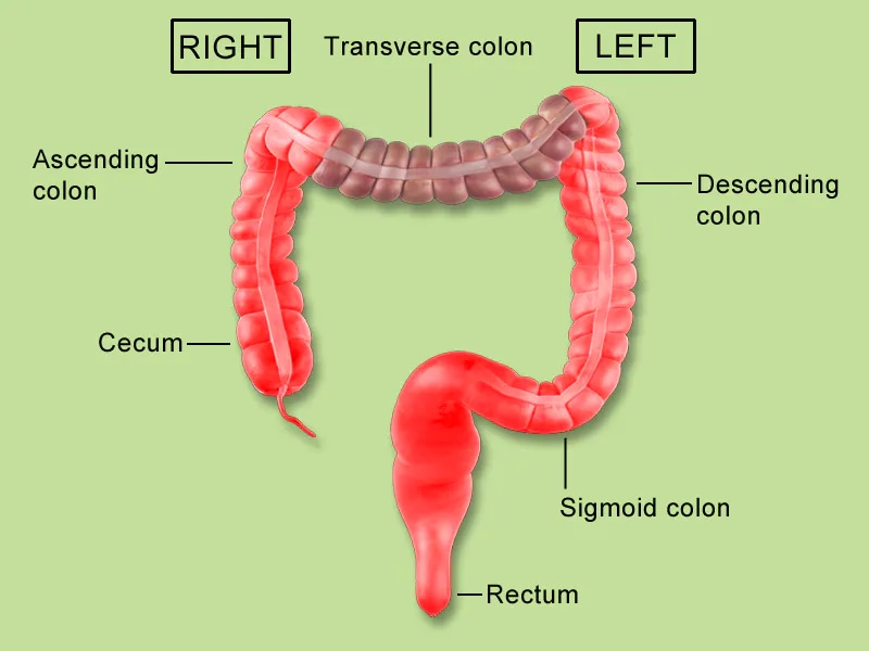 cancer colon medscape)