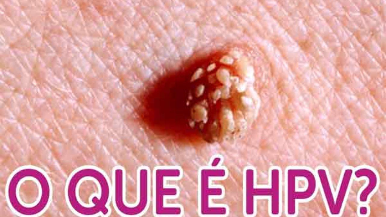 hpv papiloma tratamento)