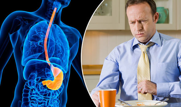 pancreatic cancer acid reflux