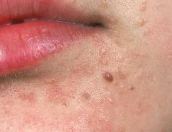 papilloma on the face)