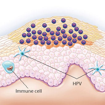 hpv home removal)