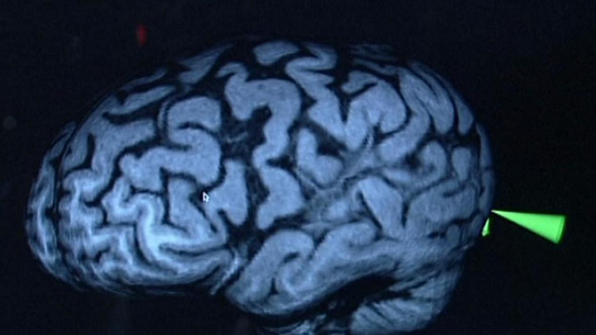 paraziti v mozku)