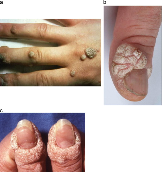 hpv persistent warts