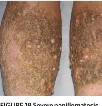stasis papillomatosis treatment)