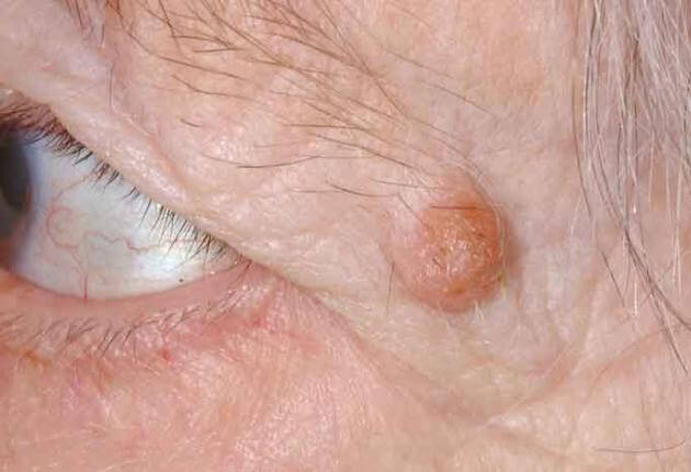 types of eyelid papilloma