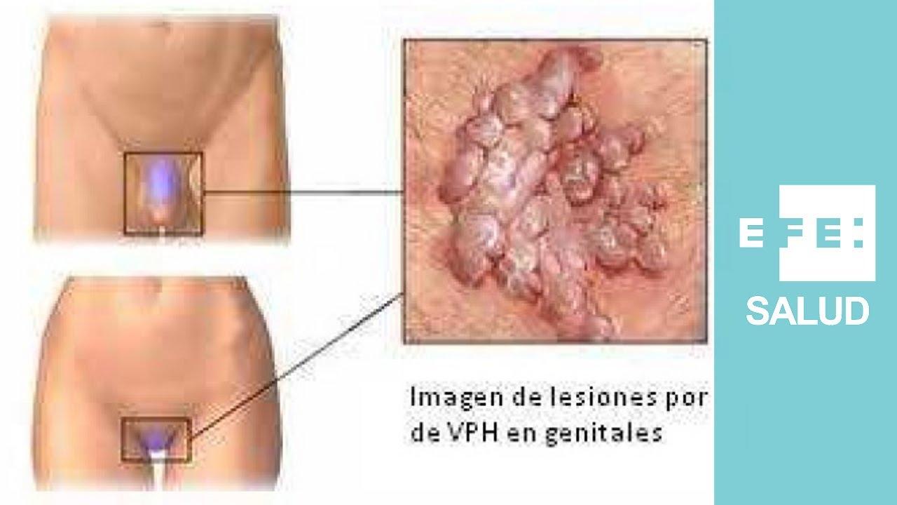 virus del papiloma humano una mujer
