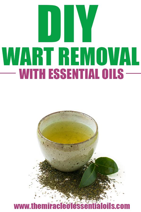 plantar wart home remedy essential oils
