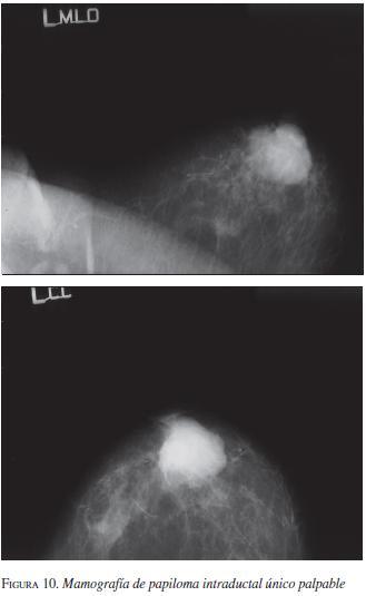 papiloma intraductal intraquistico