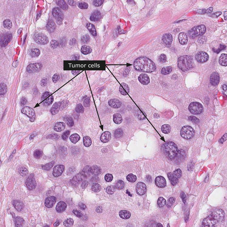abdominal cancer biopsy)