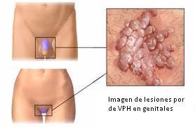 papiloma humano causas virus)