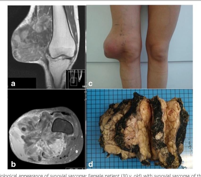 cancer synovial sarcoma